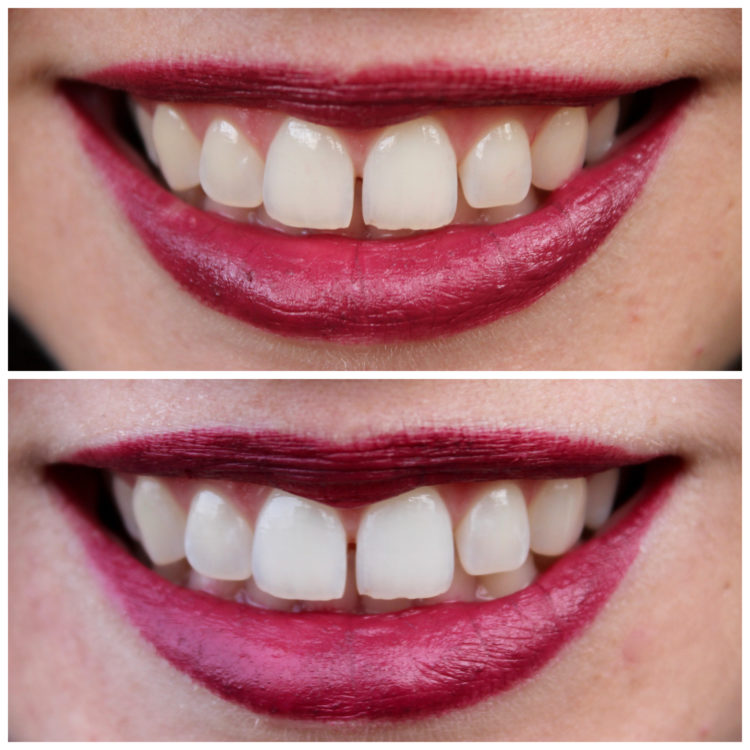 Easy Home Teeth Whitening with Smile Brilliant + Giveaway!